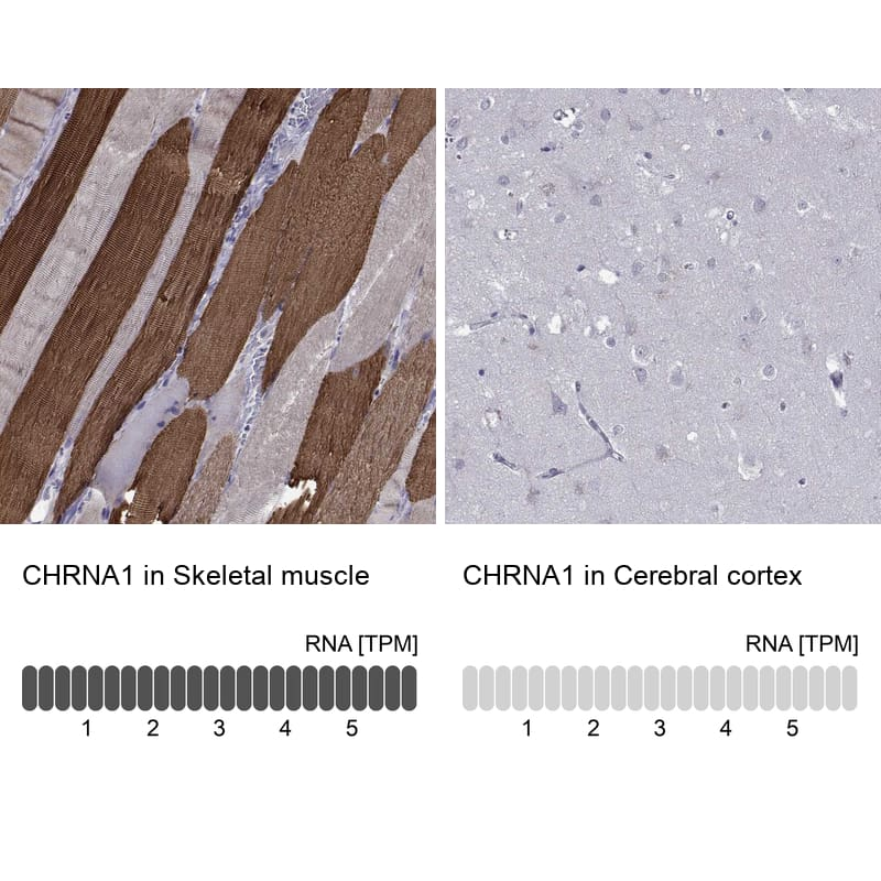CHRNA1 Antibody in Relative expression
