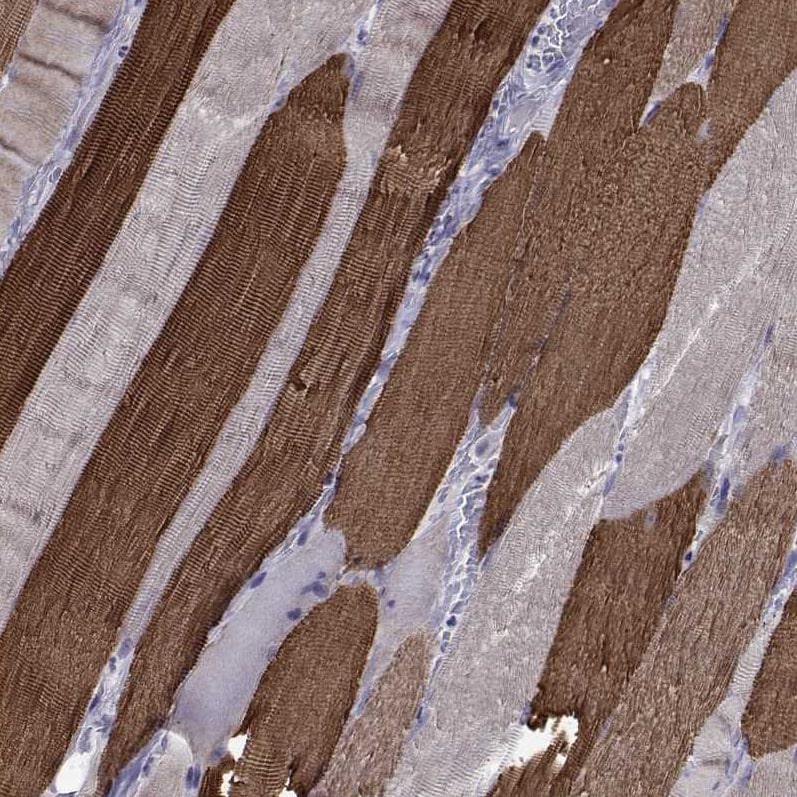CHRNA1 Antibody in Immunohistochemistry (IHC)