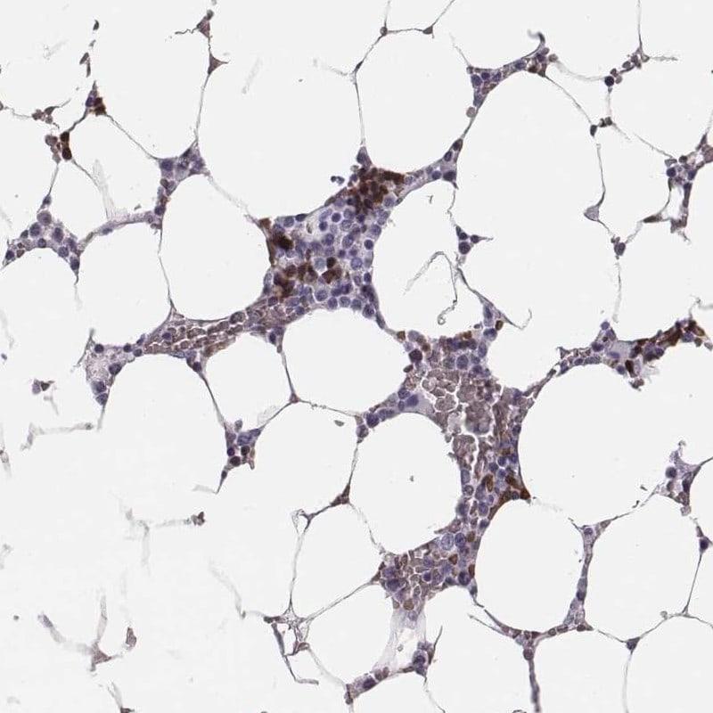 HBZ Antibody in Immunohistochemistry (IHC)