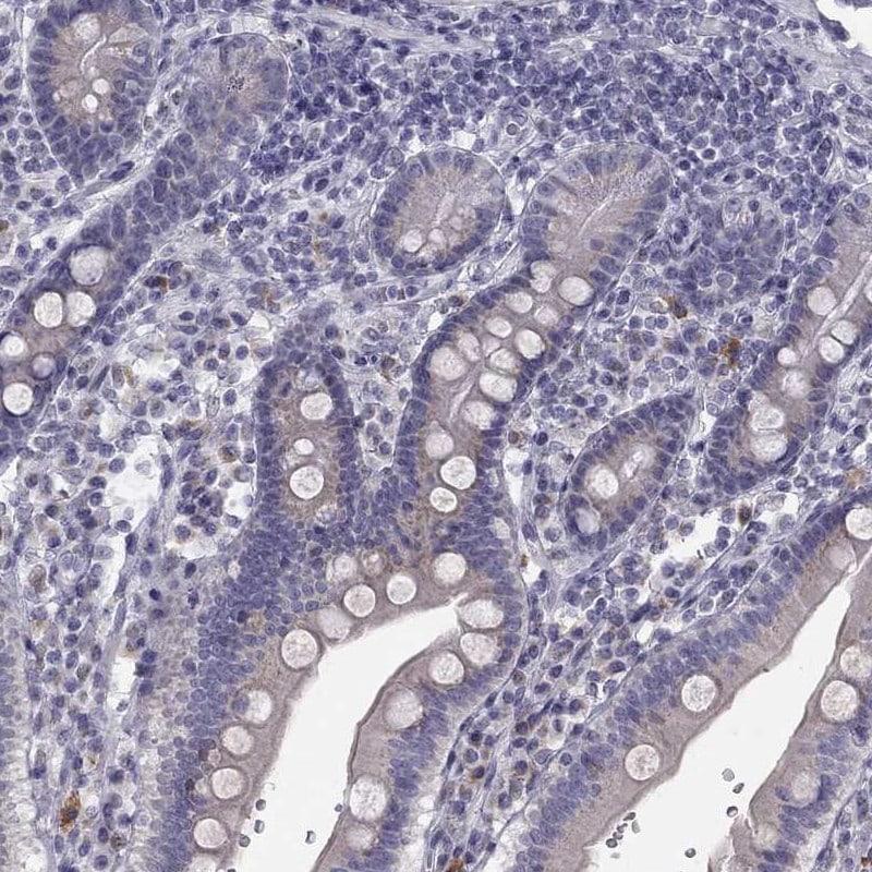 TRPS1 Antibody in Immunohistochemistry (IHC)