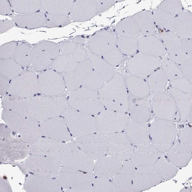 CCL27 Antibody in Immunohistochemistry (IHC)