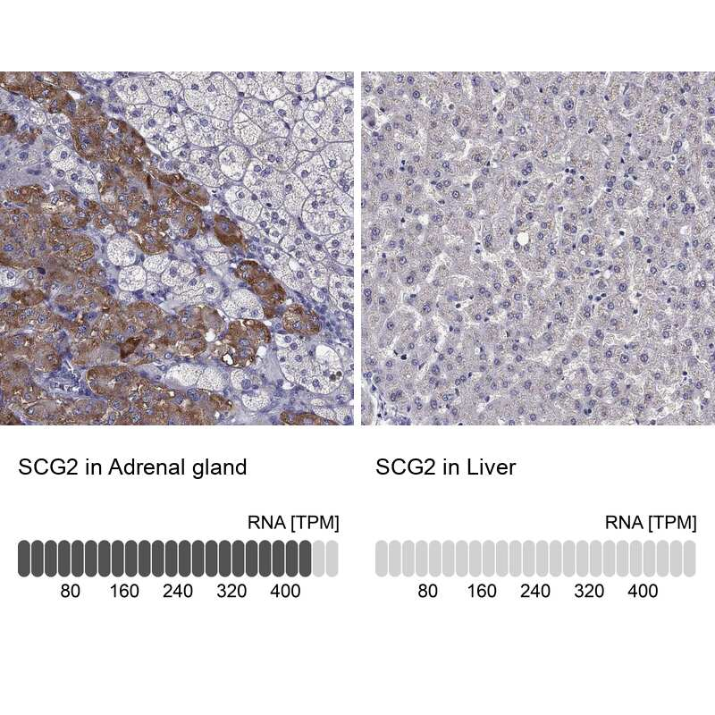 Chromogranin C Antibody in Immunohistochemistry (IHC)