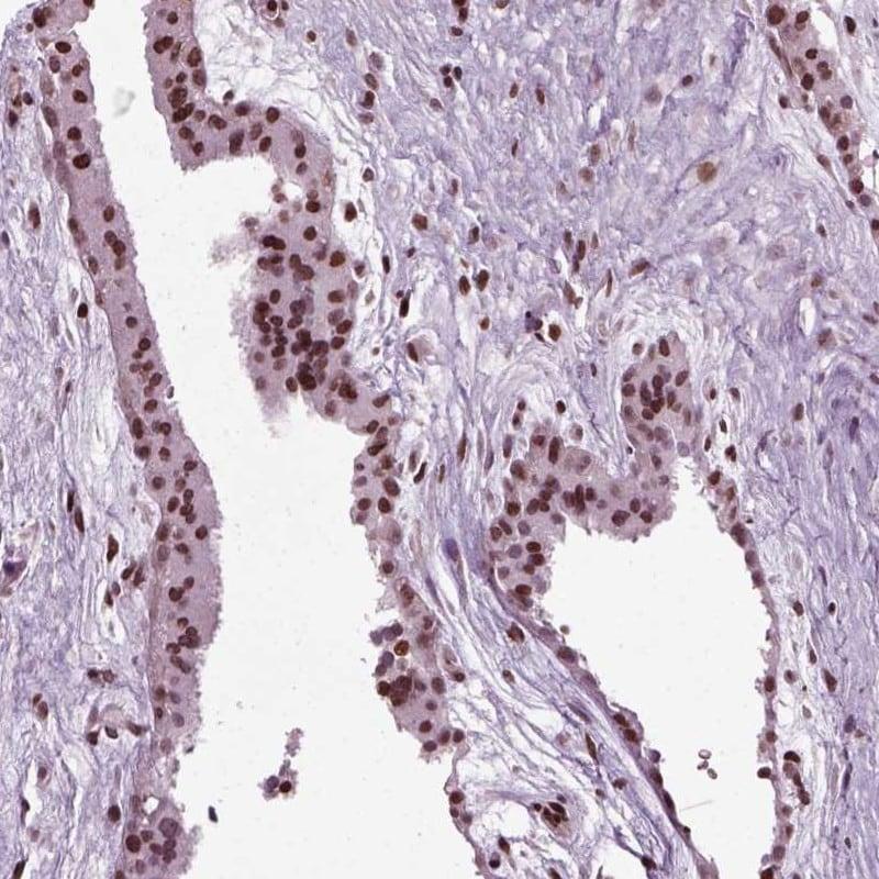 HEYL Antibody in Immunohistochemistry (IHC)