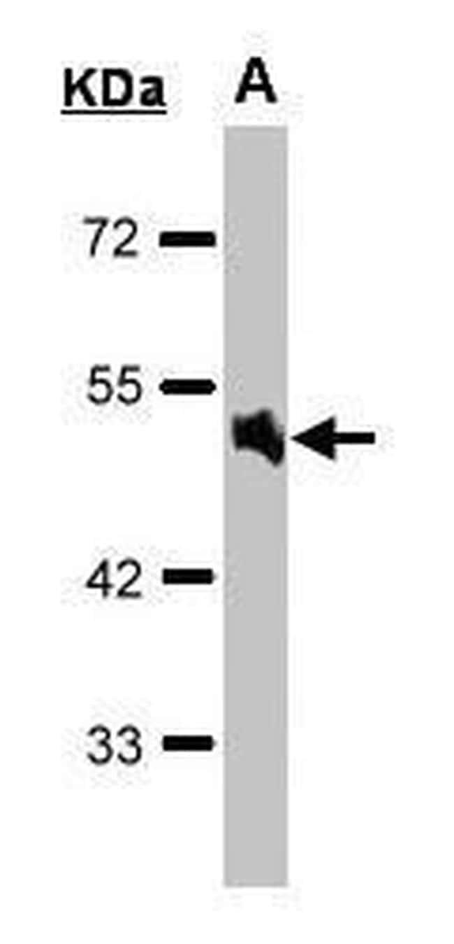 alpha-1a Adrenergic Receptor Antibody in Western Blot (WB)