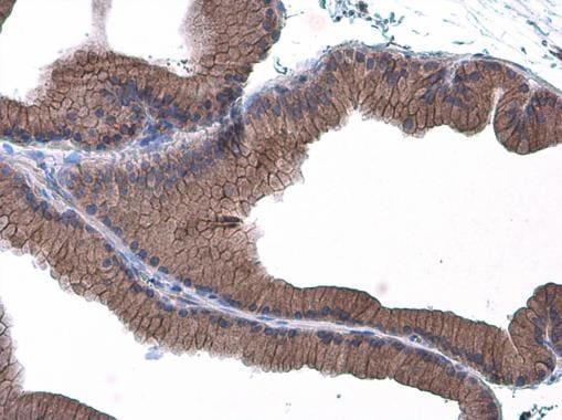 E-cadherin Antibody in Immunohistochemistry (Paraffin) (IHC (P))