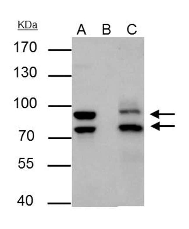 MDM2 Antibody in Immunoprecipitation (IP)