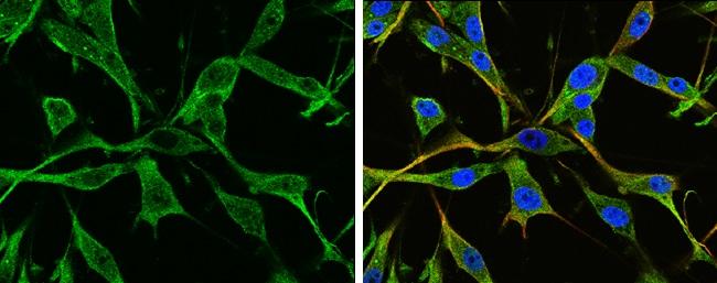 GFAP Antibody in Immunofluorescence (IF)