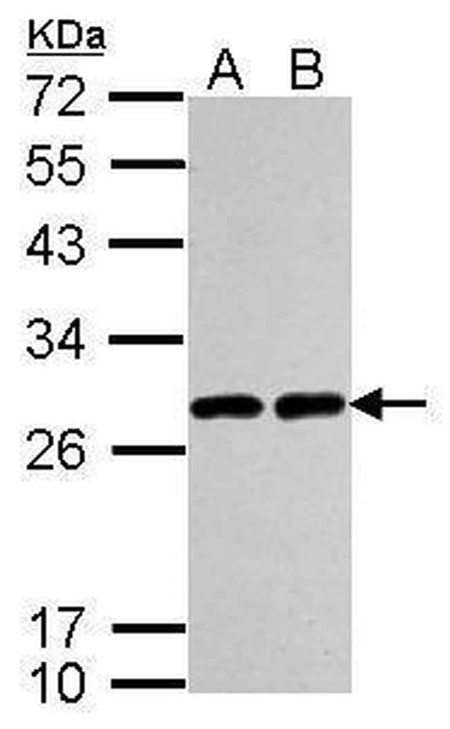 PGP9.5 Antibody in Western Blot (WB)