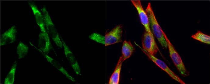 Tyrosine Hydroxylase Antibody in Immunofluorescence (IF)