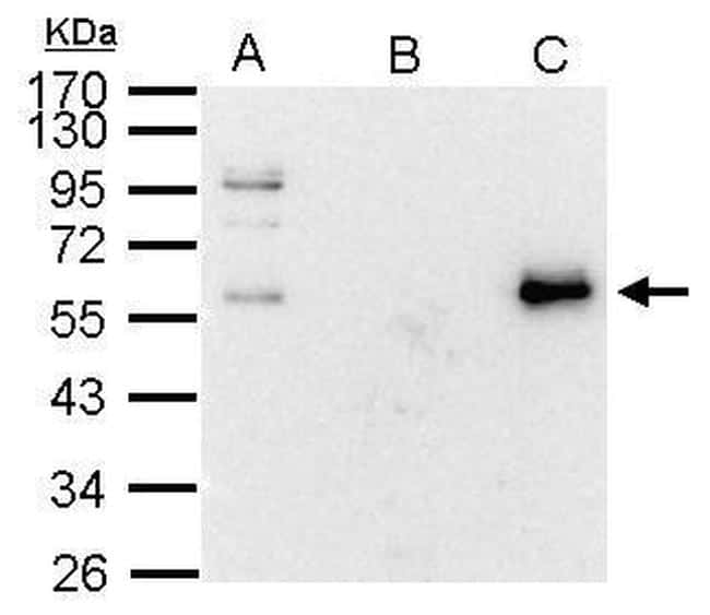 c-Myc Antibody in Immunoprecipitation (IP)