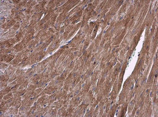 ALDH7A1 Antibody in Immunohistochemistry (Paraffin) (IHC (P))