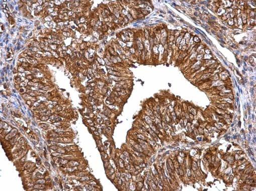 MMP2 Antibody in Immunohistochemistry (Paraffin) (IHC (P))