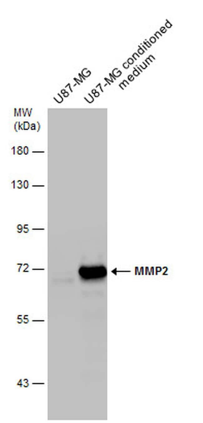 MMP2 Antibody in Western Blot (WB)