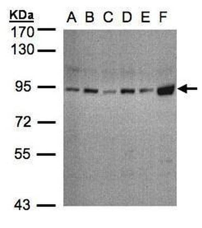 STAT3 Antibody in Western Blot (WB)