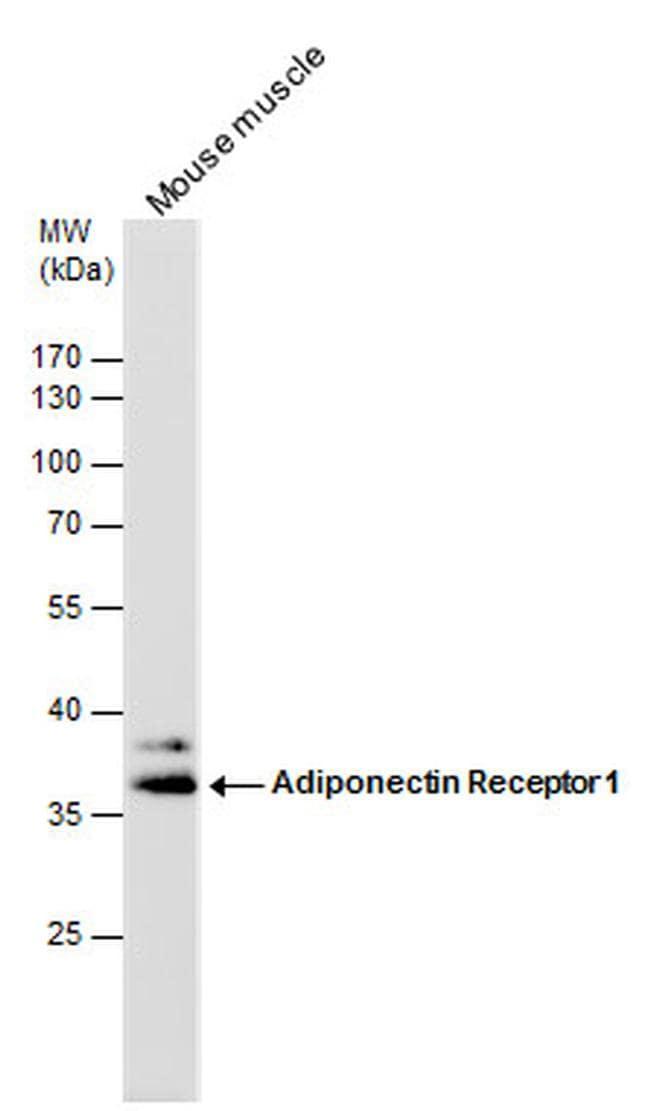 Adiponectin Receptor 1 Antibody in Western Blot (WB)