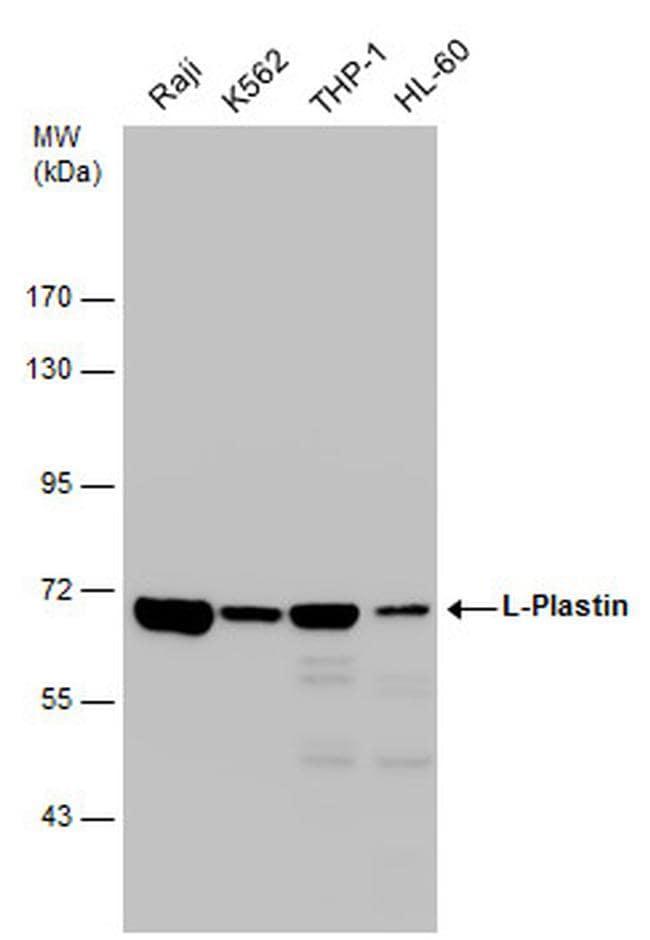 L-Plastin Antibody in Western Blot (WB)