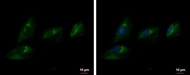 ENPP2 Antibody in Immunofluorescence (IF)