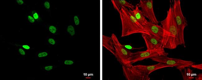 FOXP3 Antibody in Immunofluorescence (IF)
