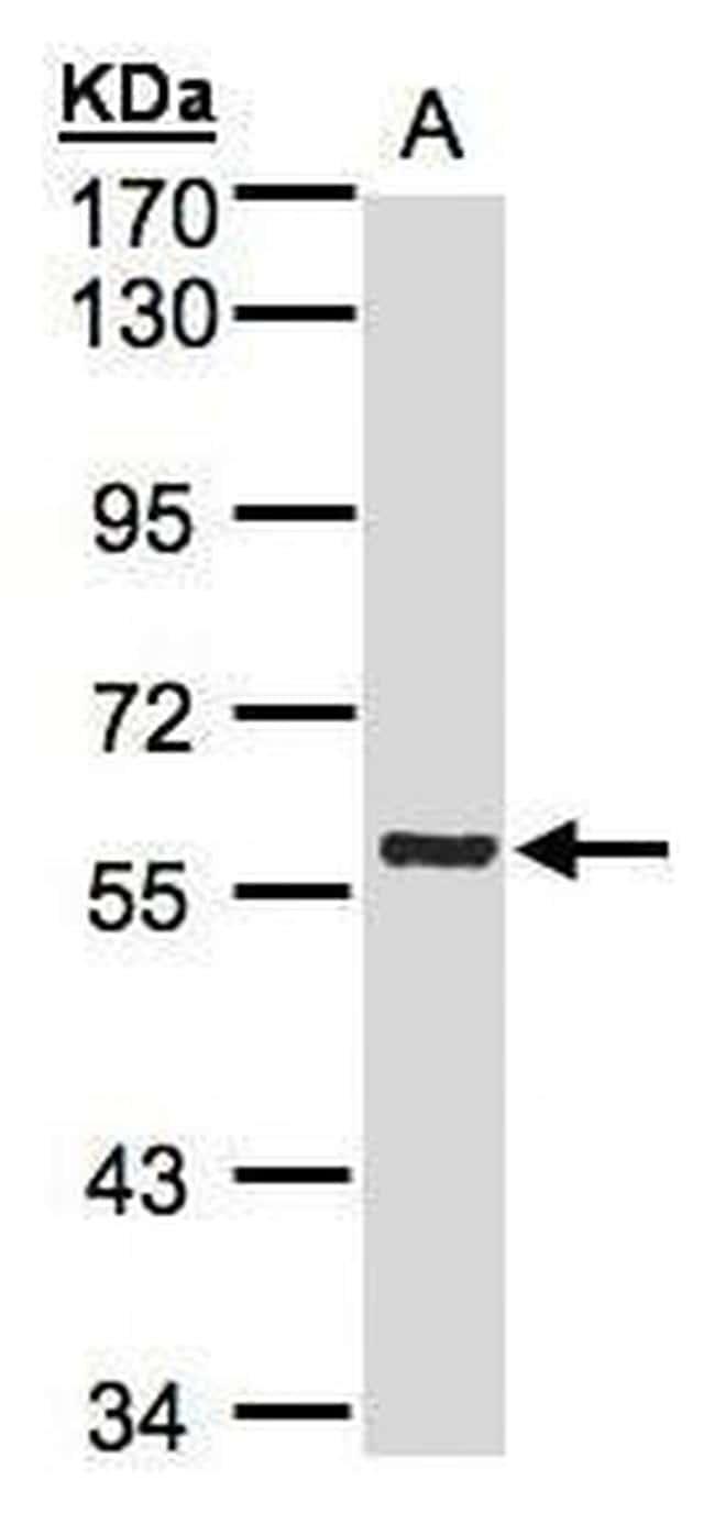 PINK1 Antibody in Western Blot (WB)
