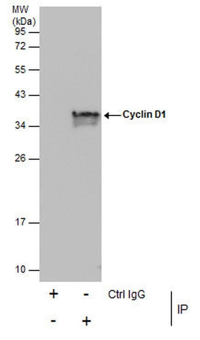 Cyclin D1 Antibody in Immunoprecipitation (IP)