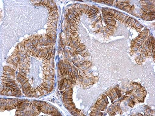 ACVR1 Antibody in Immunohistochemistry (Paraffin) (IHC (P))