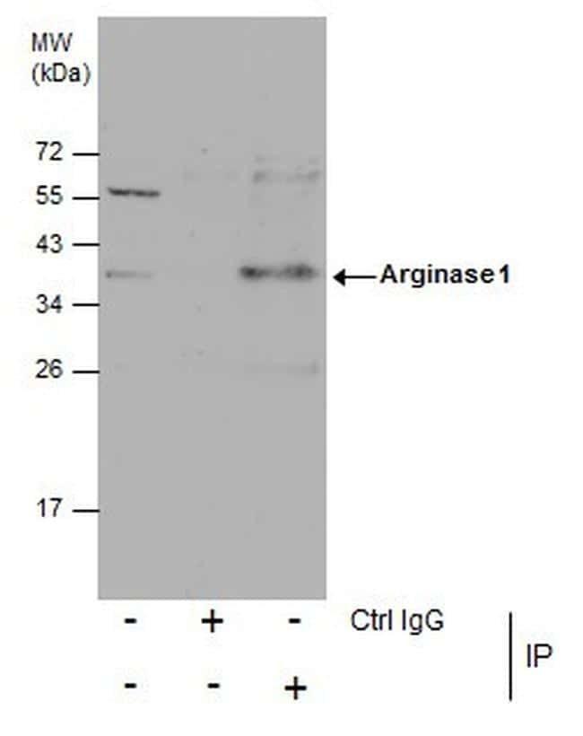 Arginase 1 Antibody in Immunoprecipitation (IP)
