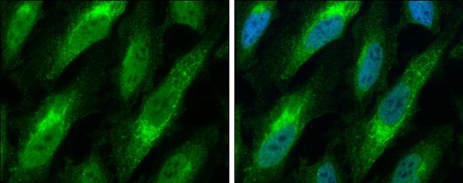 Bax Antibody in Immunofluorescence (IF)