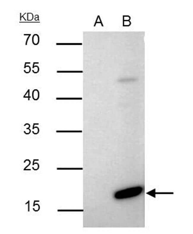 Bax Antibody in Immunoprecipitation (IP)
