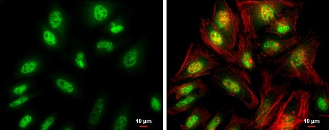 FZR1 Antibody in Immunocytochemistry (ICC/IF)