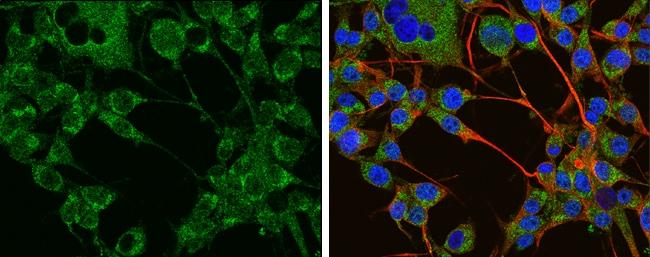 Tyrosine Hydroxylase Antibody in Immunofluorescence (IF)