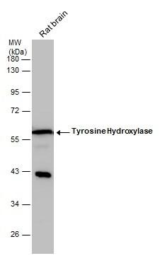 Tyrosine Hydroxylase Antibody in Western Blot (WB)