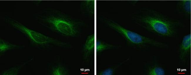 Cardiac Troponin I Antibody in Immunofluorescence (IF)