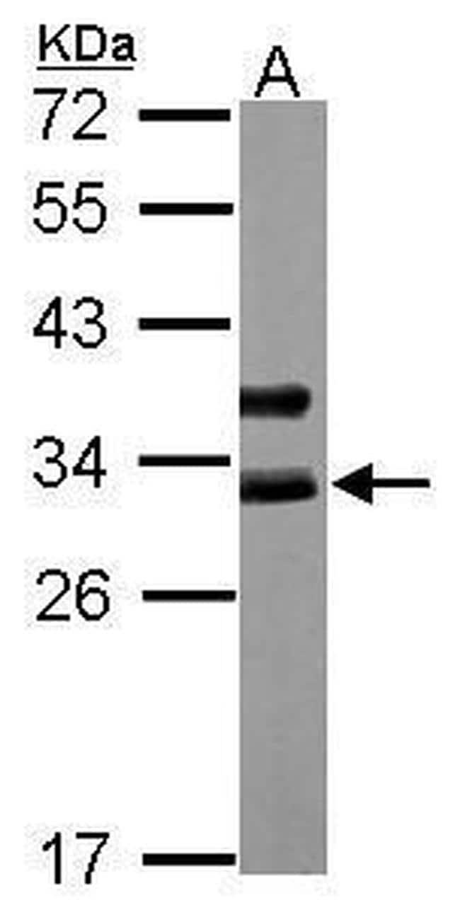 Cardiac Troponin I Antibody in Western Blot (WB)