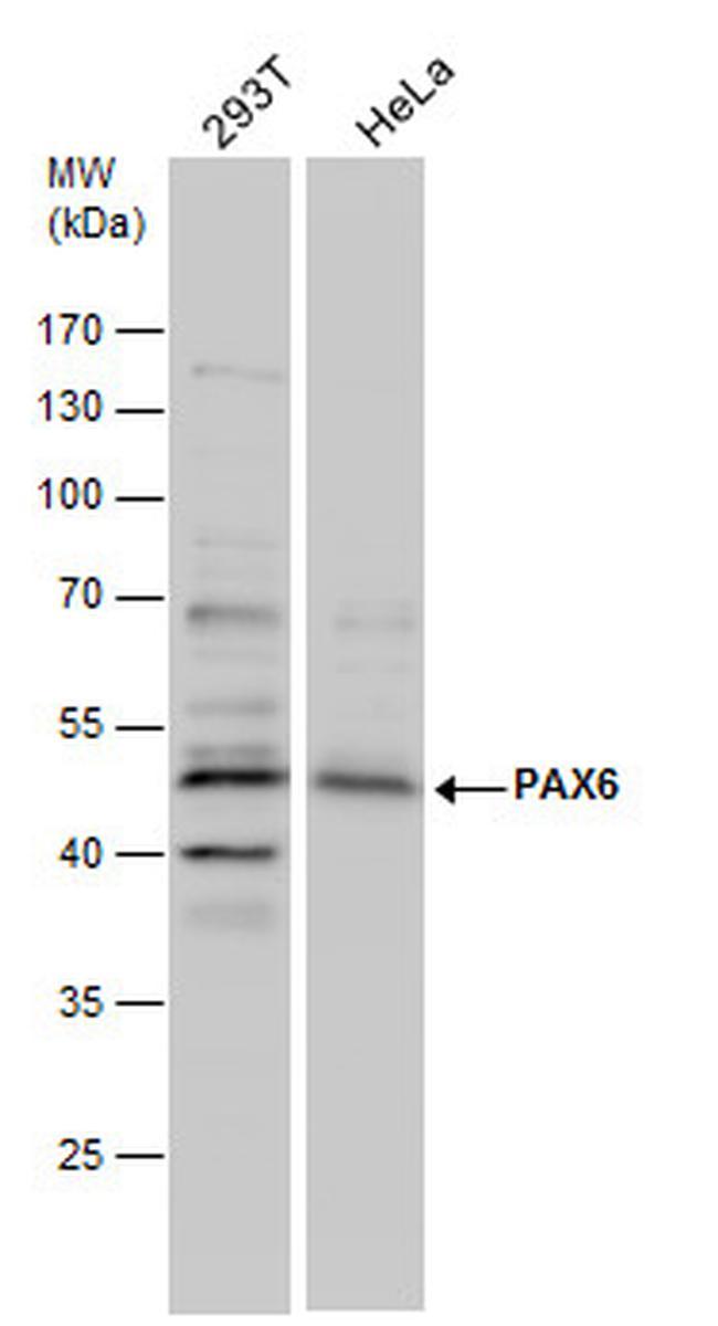 PAX6 Antibody in Western Blot (WB)