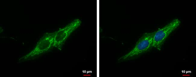 Prohibitin Antibody in Immunofluorescence (IF)