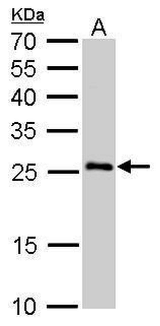 SNAP25 Antibody in Western Blot (WB)