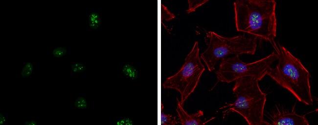 ATR Antibody in Immunofluorescence (IF)