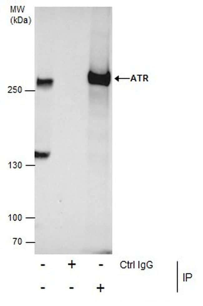 ATR Antibody in Immunoprecipitation (IP)