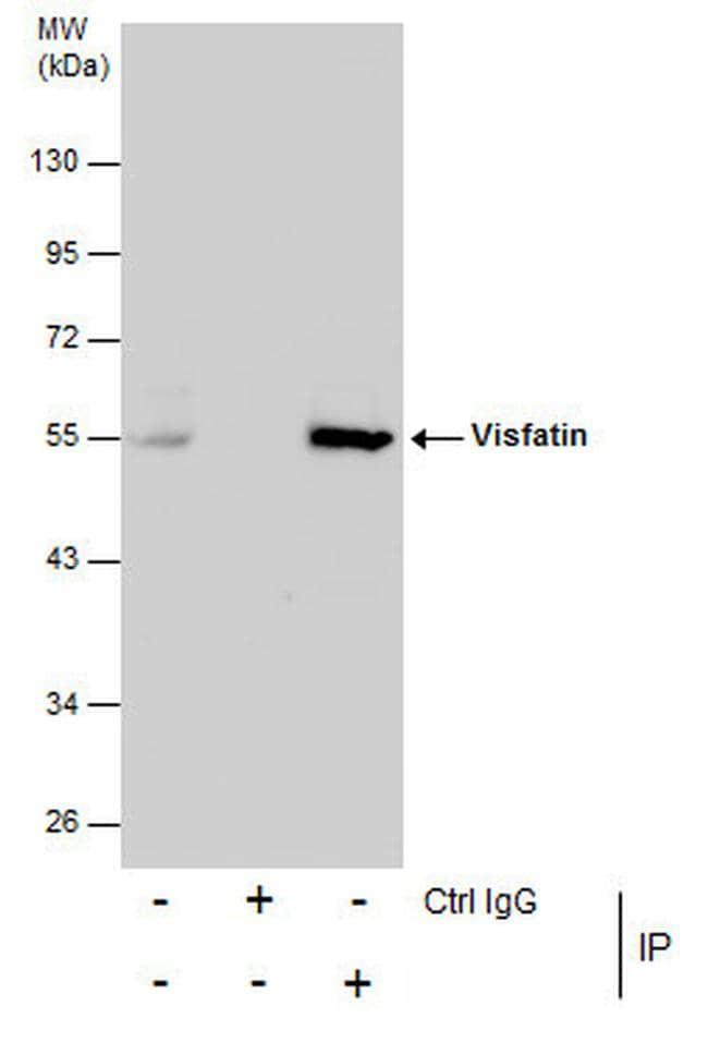 NAMPT Antibody in Immunoprecipitation (IP)