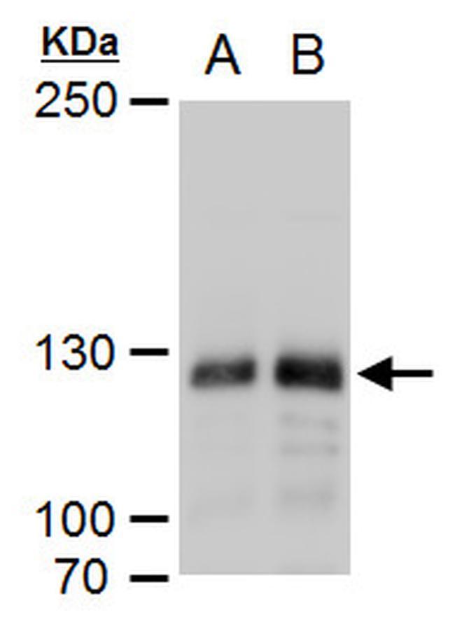 DNMT3A Antibody in Western Blot (WB)