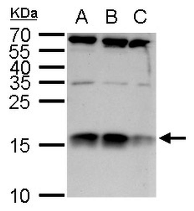 C1D Antibody in Western Blot (WB)