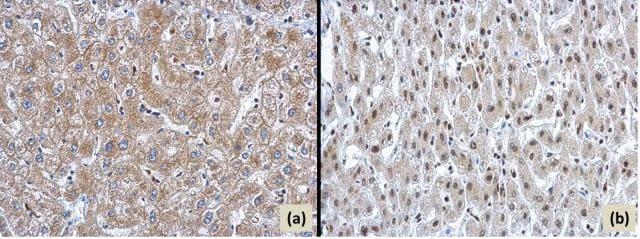 ARID2 Antibody in Immunohistochemistry (Paraffin) (IHC (P))