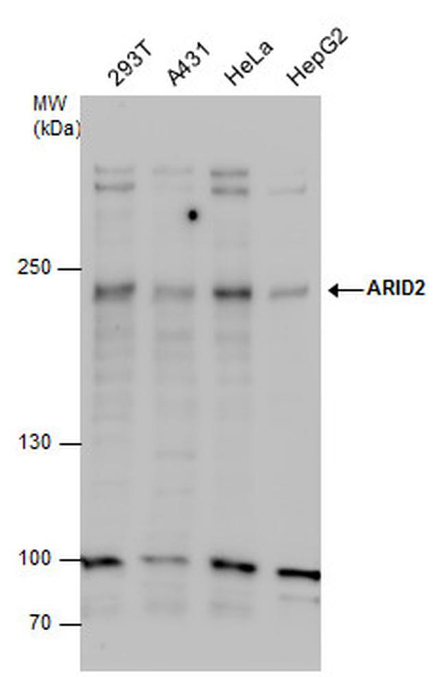 ARID2 Antibody in Western Blot (WB)
