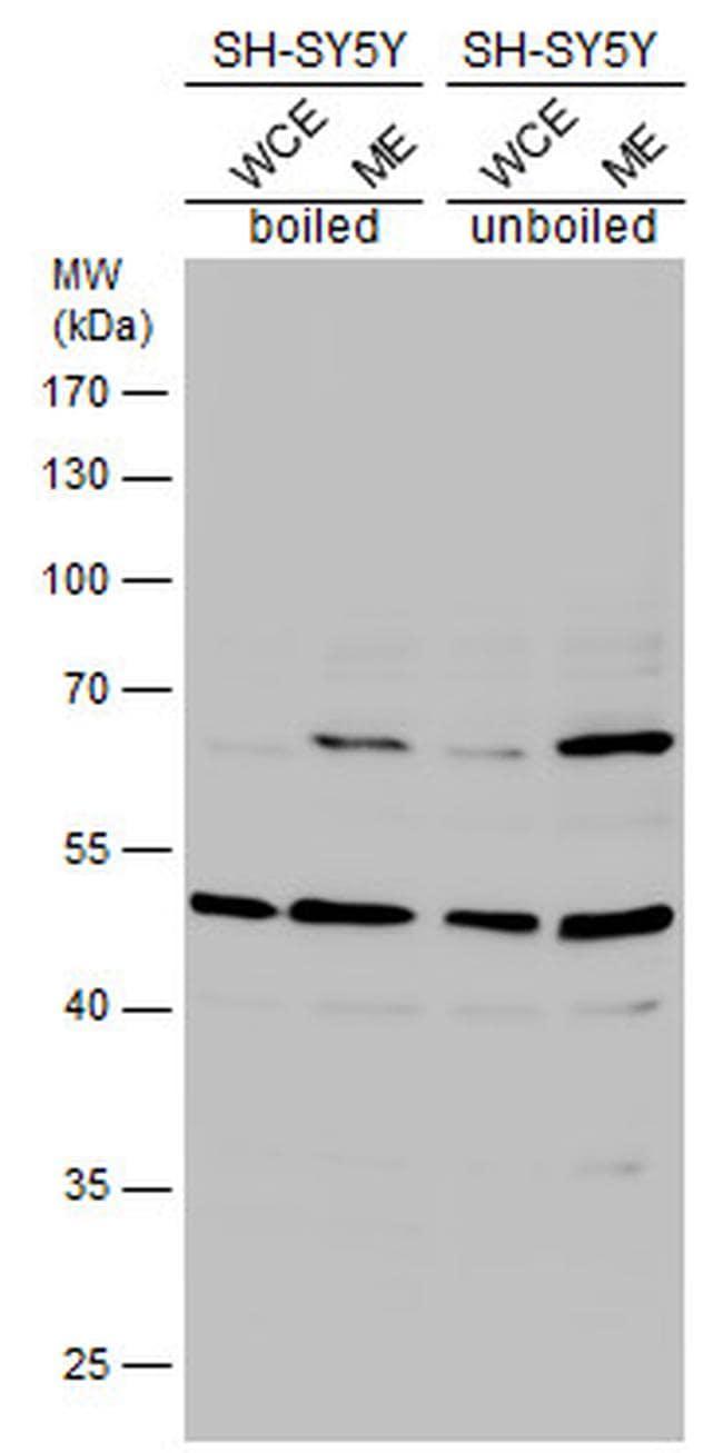 HTR2B Antibody in Western Blot (WB)