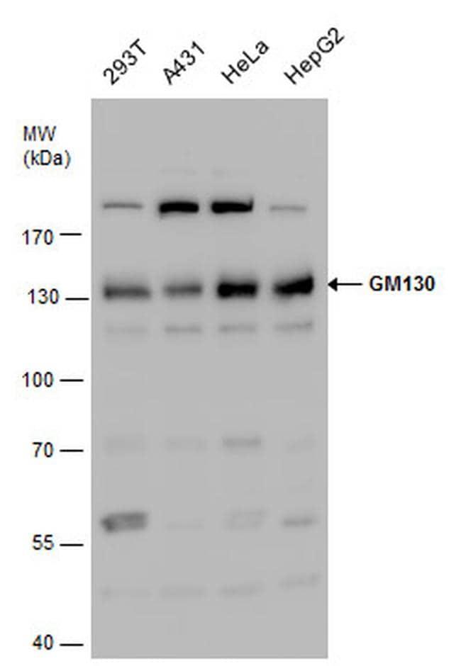 GM130 Antibody in Western Blot (WB)
