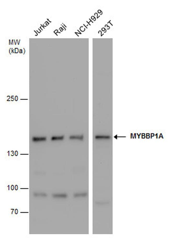 MYBBP1A Antibody in Western Blot (WB)