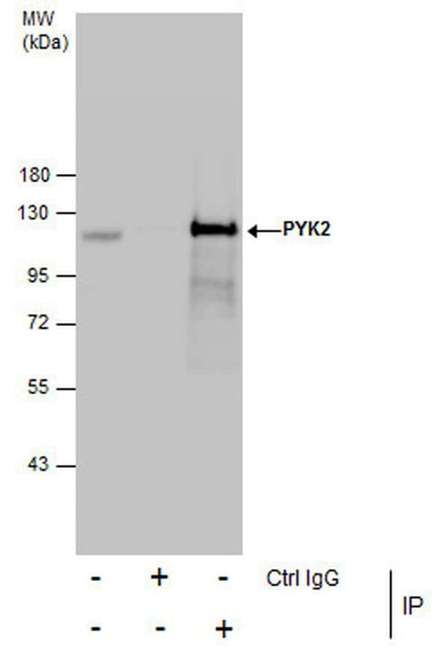 PYK2 Antibody in Immunoprecipitation (IP)