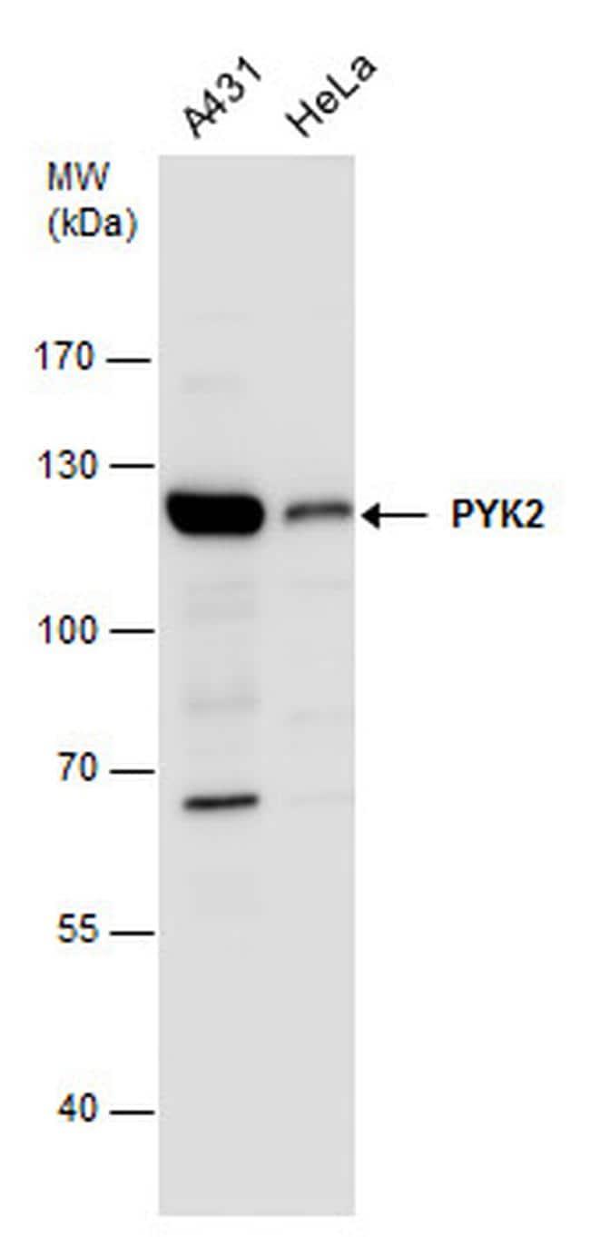 PYK2 Antibody in Western Blot (WB)