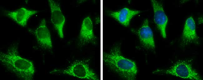 Pyruvate Carboxylase Antibody in Immunofluorescence (IF)
