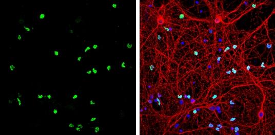 OLIG2 Antibody in Immunofluorescence (IF)